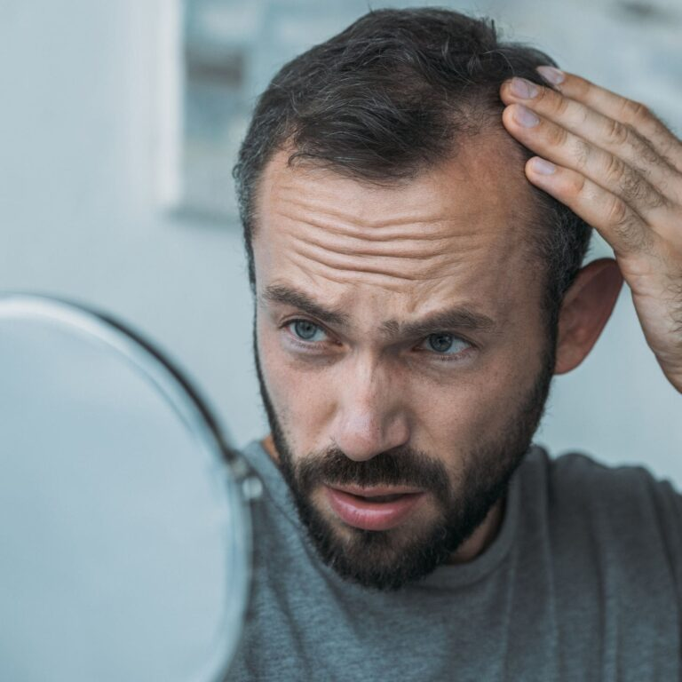 Alopecia: Diagnosis and treatment